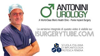 Frenulo Corto Frenulotomia e Frenuloplastica Eiaculazione Precoce Gabriele Antonini Andrologo Roma