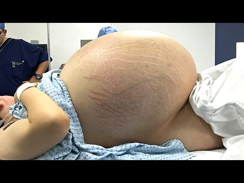 24 YR OLD HAS WORLDS BIGGEST CYST REMOVED FROM HER STOMACH