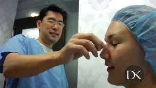 Return Breast Augmentation Patient gets Rhinoplasty