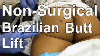 Non-Surgical Brazilian Butt Lift - Sculptra Injection - Dr. Paul Ruff | West End Plastic Surgery