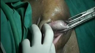 CYST EXTRACTION FROM WOMAN VULVA