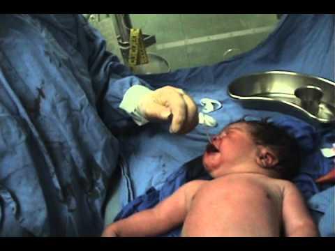 Atencion del recien nacido DR LUIS VALDEZ IMSS 20