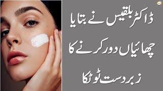 Chehray Ki Chaiyan Khatam Karnay Ka Zabardast Totka By Dr.Bilquis