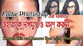 Smooth Skin and Remove Spot using Photoshop - ফটোশপ বাংলা টিউটোরিয়াল