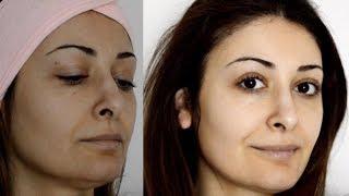 میدونستید آسپیرین رو پوست صورت معجزه میکنه؟ پیلینگ خانگی و طبیعی، روشن کننده پوست ۵ سال جوانتر شوید