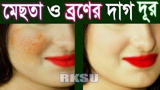 মাত্র ২ উপায়ে মেছতার দাগ ও যেকোন কালো দাগ দূর Rup Chorcha মেছতা দূর করার উপায় Beauty Tips Bangla
