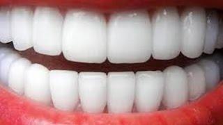 كيفية تبييض الأسنان و جعلها ناصعة البياض بأسهل الطرق