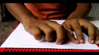 বিশ্ববিদ্যালয় পড়ুয়া মেধাবী ছাত্র দৃষ্টি প্রতিবন্ধী সুমন'র জীবন সংগ্রাম ও দারিদ্রতার কথা By S Dilip R