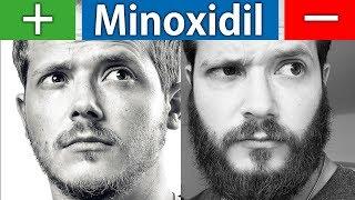Die Vor und Nachteile von Minoxidil | Kurz und Knapp