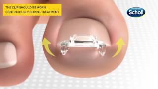Scholl Ingrowing Toenail Complete Clip & Spray Kit