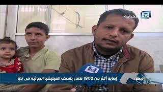 بتر قدم طفلة يمنية بعد تعرضها لقذيفة من نيران الانقلابيين
