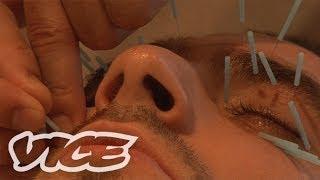 人面に鍼100本! - Facial Acupuncture