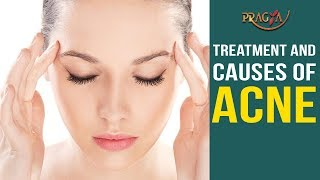 Watch Treatment and Causes of Acne | Skin Care Tips