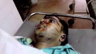 Lahiru wijethunga bike accident ded body
