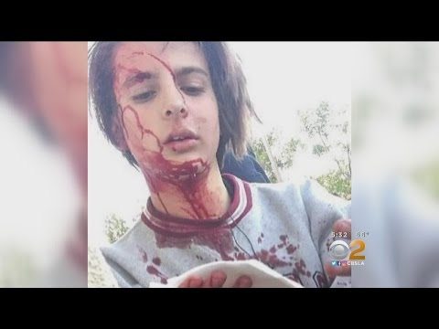 Xxx Mp4 Teenager S Skull Fractured In After School Attack Posted To Snapchat 3gp Sex