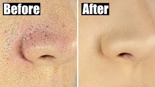 How to Reduce Bumpy, Textured Foundation for Smooth, Flawless Skin