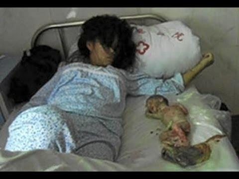 ABORTO DE 7 MESES EN CHINA. La crueldad del sistema de abortos Chino. Pásalo