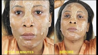 BETTER THAN BOTOX FACIAL WASH, HOW TO GET FIRM WRINKLE FREE SKIN |Khichi Beauty