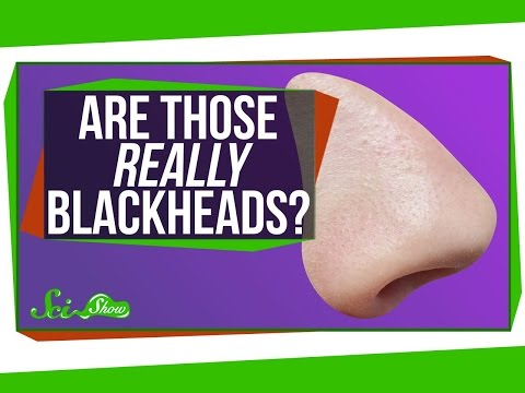 Are Those Really Blackheads