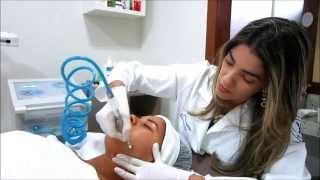 Peeling para tratamento de Acne, manchas e rejuvenescimento.