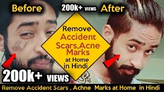 2017 How to Remove Accidental or Scars Marks from face at home | 2017 Homemade Tips  100% working |