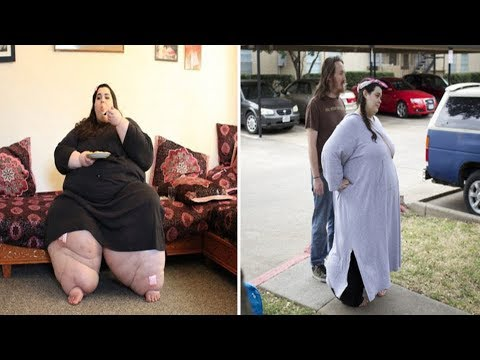 Morbidly Obese Amber Rachdi loses HALF her body weight after hitting 657lb in Oregon