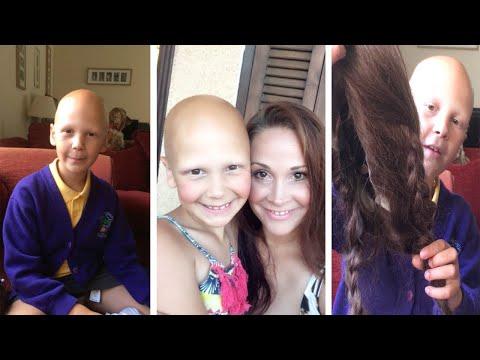 Xxx Mp4 Brave Schoolgirl Embraces Alopecia 3gp Sex