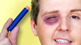 NERF EYE ACCIDENT!