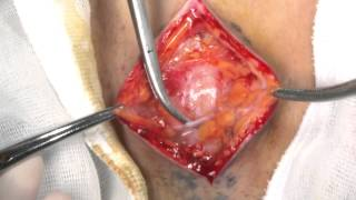 Perfect Local Anesthesia for Inguinal Hernia Repair
