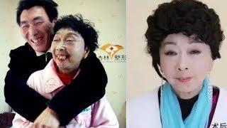 Cụ bà 71 tuổi, Để xứng đôi với chồng trẻ 37 tuổi sẵn sàng dao kéo và kết quả gây choáng