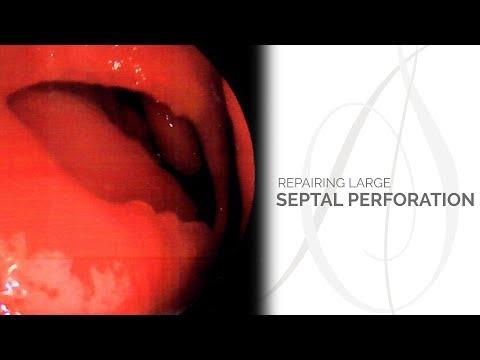 Xxx Mp4 Repairing A Large Septal Perforation 3gp Sex