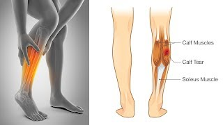 How to Stop Leg Muscle Cramps | Natural Cures