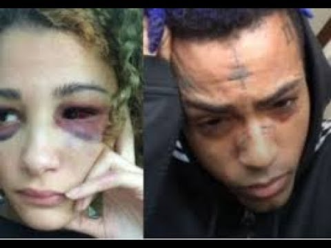 Xxx Mp4 XXX Tentacion Recording Where He Admits To Domestic Violence MyMixtapez News 3gp Sex