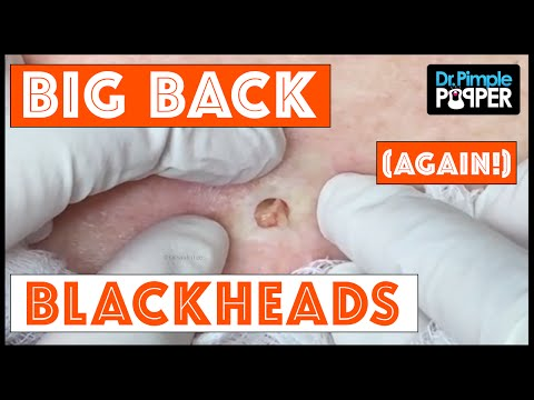 The Third Return of Big Back Blackheads Dr Pimple Popper