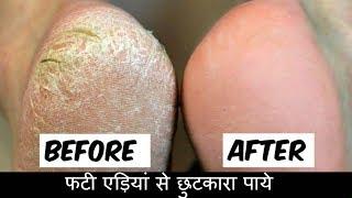सिर्फ 1 बार में फटी एड़ियां से छुटकारा पाये - Cracked Heels Home Remedy in Hindi