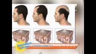 5 minute de sănătate - despre căderea părului - 7 iunie 2013