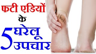 7 Home Remedies For Cracked Heels फटी एडियों के उपचार Beauty Tips in Hindi by Sonia Goyal #94