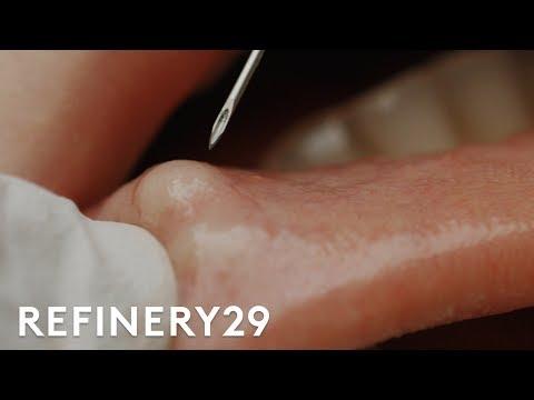 Xxx Mp4 I Got My Botched Lip Filler Popped Macro Beauty Refinery29 3gp Sex