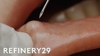 I Got My Botched Lip Filler Popped | Macro Beauty | Refinery29