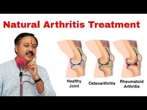 Xxx Mp4 आर्थराइटिस का उपचार Arthritis Treatment By Rajiv Dixit 3gp Sex