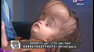 """أنا والناس - أميرة بدر تناشد وزارة الصحة بحالة الطفل """" يوسف """" الذى تحدثت عنه مواقع التواصل """""""