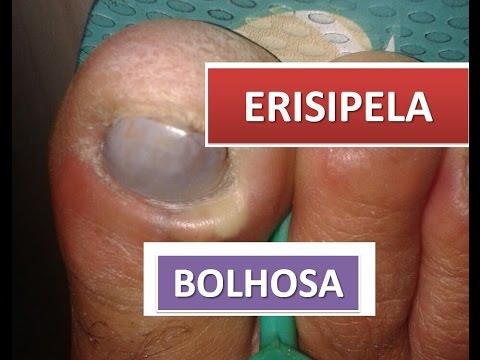 ERISIPELA BOLHOSA