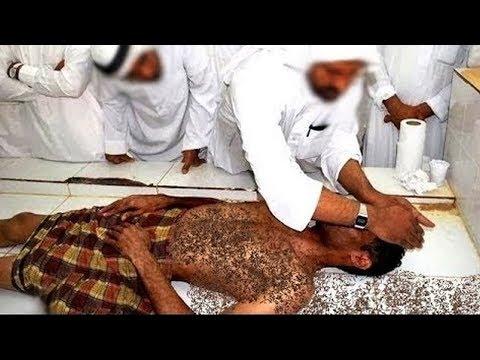 اشهر مغسل بالسعودية يكشف اكبر مشهد مرعب لرجل اكل النمل جسده اثناء تغسيله