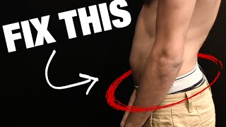 How to Fix Anterior Pelvic Tilt (SIT HAPPENS!)
