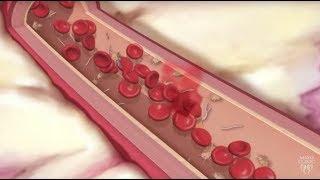 Coated Aspirin and Your Heart - Mayo Clinic