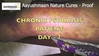 Psoriasis cured Naturally @ AAYUSHMAAN CHENNAI