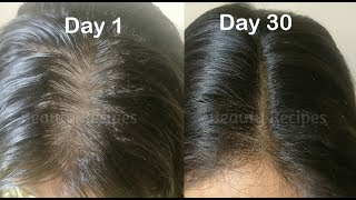 Use Vitamin E Oil for Hair Growth mixed with Onion juice for Long Hair, Regrow lost hair from roots