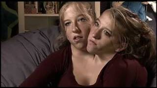 Abigail & Brittany Hensel - The Twins Who Share a Body