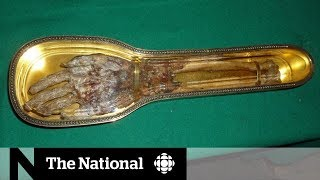 St. Francis Xavier's severed forearm to tour Canada