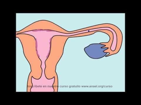 Los dispositivos intrauterinos DIU son abortivos